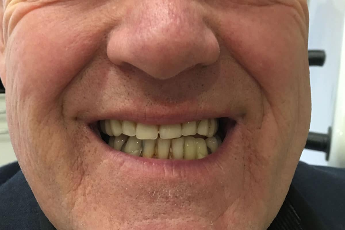 male-teeth-before-dentures