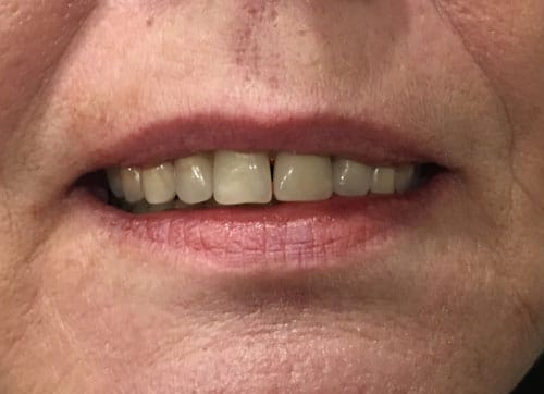 comparison-image-teeth-after