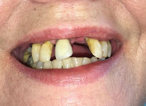 comparison-image-teeth-before